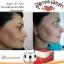 โซไนซ์ ชาร์มมิ่ง สกิน ครีม (Sonice Charming Skin Cream) thumbnail 23