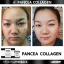 กลูต้า แพนเซีย Gluta Pancea (30 แคปซูล) thumbnail 18