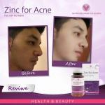 Zinc for Acne (100 Tablets) 50 mg อาหารเสริม วิตามินรวม A C E ฺB6 และ ซิงค์ ลดสิว ผิวเรียบเนียน วิตนามินรวมสำหรับผู้ที่มีปัญหาเรื่องสิว